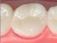 イクティス歯科のジルコニアセラミック
