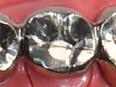 イクティス歯科の金銀パラジウム合金